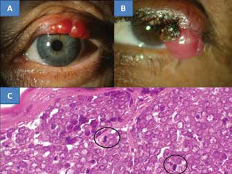 4. MCC of the eyelid in a 78 year old patient (A), MCC of the eyelid in a 67 year old patient (B), the characteristic histological finding of MCC is formed by oval, non-dendritic, epidermal clear cells with mitoses – indicated with a circle (C), HE colouring, enlargement 300x