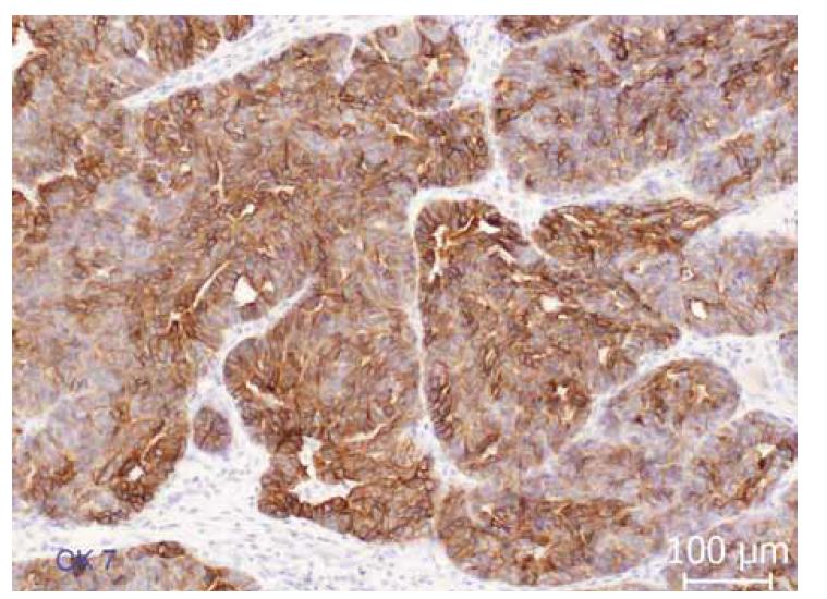Imunohistochemická exprese cytokeratinu 7 (CK7). Difuzní membránová a cytoplazmatická exprese CK7 v nádorovém epitelu.<br> Fig. 3. Immunohistochemical expression of cytokeratin 7 (CK7). Diffuse membrane and cytoplasmic expression of CK7 in tumor epithelium.