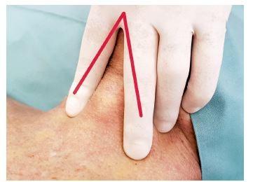 """Obrácené """"V"""" z prstů fixuje kůži a podkoží k trachei, zároveň určuje místo řezu """"na spojnici mezi prsty"""", dlaní ruky zároveň provádíme záklon hlavy"""