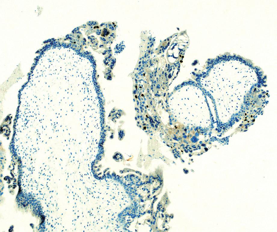 Histologický preparát – imumunochistochemie p57<br> Kompletní mola hydatidosa. Vilózní cytotrofoblast a buňky stromatu jsou negativní na imunohistochemii p57. Intermediální trofoblast slouží jako vnitřní pozitivní kontrola.