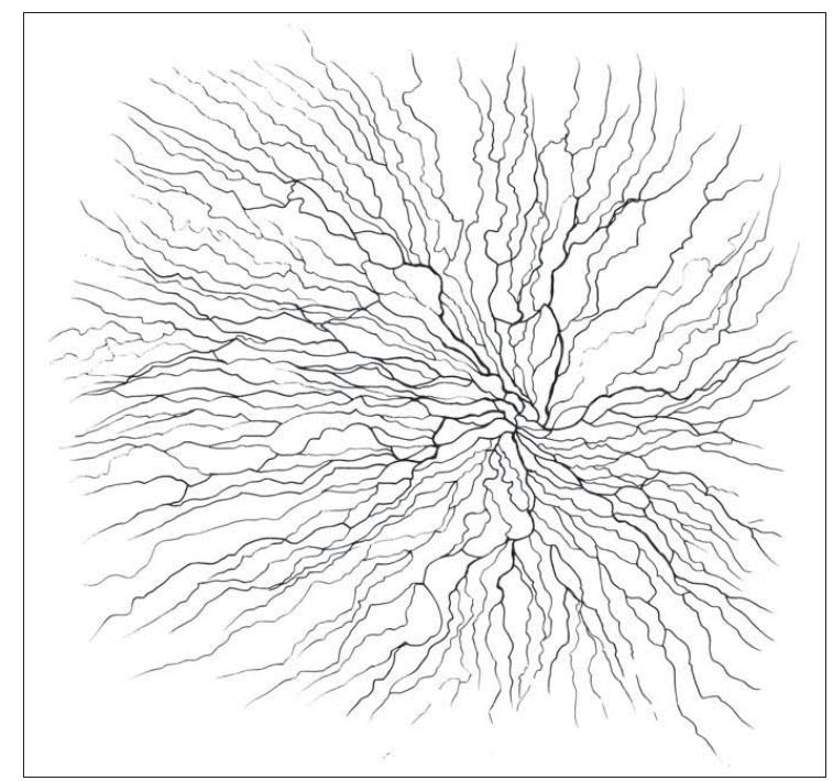 Schematické vyobrazení subbazálního plexu.<br> Fig. 1. Subbasal plexus illustration.
