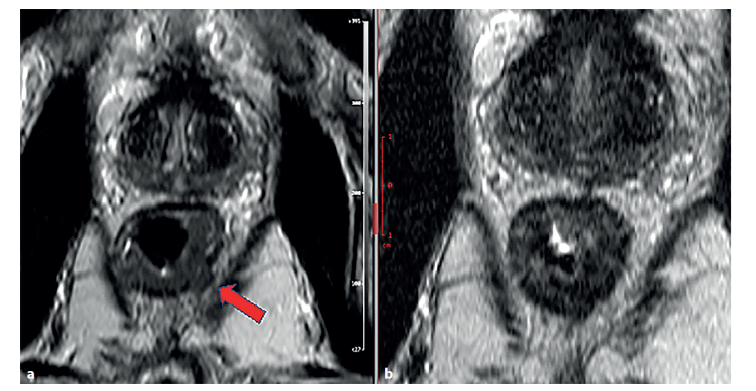 Magnetická rezonance rekta, T2 vážené obrazy v šikmé axiální rovině<br> a) stagingové vyšetření − známky prorůstání tumorózní tkáně (střední intenzita signálu) přes muscularis propria (šipka), obraz T3b;<br> b) restaging po chemoradioterapii.<br> Došlo k poklesu signálu tumorózní tkáně (známka fibrotizace), bez známek prorůstání přes muscularis propria.<br> Fig. 1: Magnetic resonance imaging of the rectum, T2-weighted images in inclined axial plane<br> a) staging examination − signs of tumor growth (medium signal stength) through muscularis propria (arrow), figure T3;<br> b) restaging imaging after chemoradiotherapy.<br> Decrease in tumor tissue signal (sign of fibrotization), without signs of tumor growth through muscularis propria.