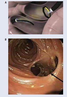Parciálna jejunálna diverzia pomocou magnetických osemhranov. A – príprava k naloženiu magnetov B – endoskopický pohľad na jejúnoileálnu anastomózu. Upravené podľa [19]