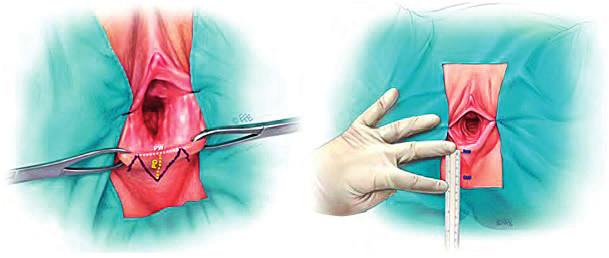 Schéma měření různých délek na perineu a při jeho operační rekonstrukci (s úpravami převzato z originální publikace [5] se souhlasem autorského kolektivu)