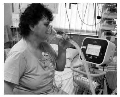 Pacientka na jednotce intenzivní péče po zaškolení samostatně používá přístroj CoughAssist v automatickém režimu s použitím obličejové masky. Přístroj spouští cyklus MIE dle vysledovaného pacientova dechového úsilí. Fotografie byla pořízena s informovaným souhlasem pacientky.