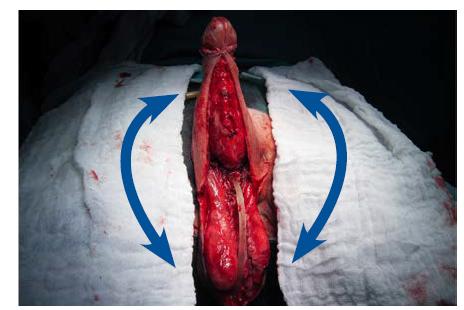 Stav po snesení granulační tkáně k úrovni Buckovy fascie, příprava ventrální plochy skrota k odběru živených laloků k vytvoření kompletního kožního krytu penisu<br> Fig. 7. Transfer of two vascular skin flaps from the ventral surface of the scrotum to the penis