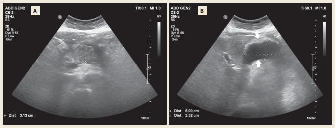 Abdominální UZ s odstupem týdne s nehomogenním zbytněním těla pankreatu (A) a tekutinovou kolekcí mezi  pankreatem a zadní stěnou žaludku (B). <br> Fig. 2. Abdomminal ultrasound after 1 week with nonhomogenous exuberance of the pancreatic body (A) and fl uid collection  inbetween the pancreas and the posterior wall of the stomach (B).
