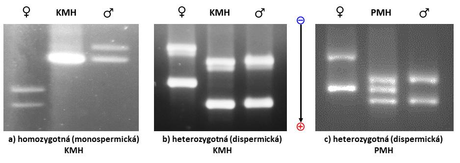 Analýza umožní porovnať profily DNA matky, DNA choriových klkov a prípadne aj DNA otca (KMH - kompletná mola hydatidóza, PMH - parciálna mola hydatidóza)