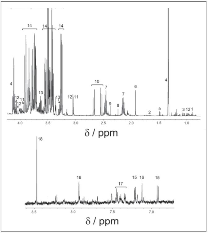 1H-NMR spectrum of cerebrospinal fl uid, cpmg acquisition. 1 – isoleucine; 2 – leucine; 3 – valine; 4 – lactate; 5 – alanine; 6 – acetate; 7 – glutamine; 8 – acetone; 9 – pyruvate; 10 – citrate; 11 – creatine; 12 – creatinine; 13 – myo-inositol; 14 – glucose; 15 – tyrosine; 16 – histidine; 17 – phenylalanine; 18 – formate<br> Obr. 1. 1H-NMR spektrum v cerebrospinálnom likvore, nábor v pulzovej sekvencii 1H-NMR. 1 – izoleucín; 2 – leucín; 3 – valín; 4 – laktát; 5 – alanín; 6 – acetát; 7 – glutamín; 8 – acetón; 9 – pyruvát; 10 – citrát; 11 – kreatin; 12 – kreatinín; 13 – myo-inozitol; 14 – glukóza; 15 – tyrozín; 16 – histidín; 17 – fenylalanín; 18 – formát