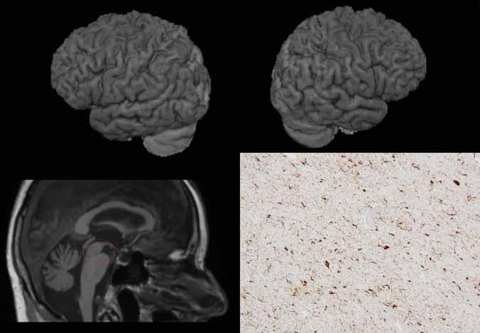 """Primární apraxie řeči – MR a neuropatologie. 3D povrchová rekonstrukce mozku na základě 3D T1-vážených obrazů MR – nahoře vlevo (a) pohled na levou hemisféru, nahoře vpravo (b) na pravou; vlevo dole (c) sagitální řez se zaměřením na mozkový kmen. Nález na MR s jen minimální korovou atrofií, na sagitálním řezu je však patrna atrofie v dorzální části mezencefala (příznak """"tučňáka""""). d) Neuropatologický obraz – diagnostická depozita hyperfosforylovaného tau proteinu v imunohistochemickém průkazu protilátkou klonu AT8 v neokortexu odpovídající vyvinuté progresivní supranukleární obrně. <br> Fig. 4. Primary apraxia of speech – MRI and neuropathology. 3D surface reconstruction (volume rendering technique) of the brain based on 3D T1-weighted MRI images – left hemisphere above on the left (a), right hemisphere above on the left (b). Below on the left (c) sagittal slice showing the brainstem. MRI fi ndings with only mild cortical atrophy; however, the sagittal image shows atrophy of the dorsal midbrain (""""penguin sign""""). d) Neuropathology – deposits of hyperphosphorylated tau protein in immunohistochemical staining with antibody against AT8 clones in the neocortex corresponding to developed progressive supranuclear palsy"""