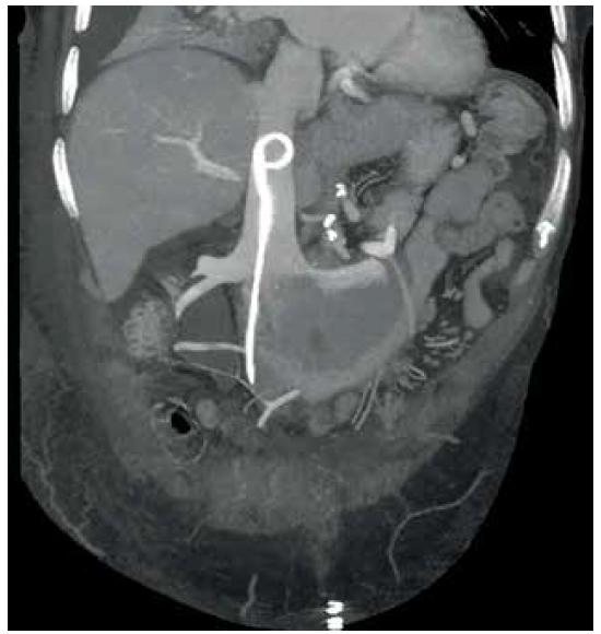 Uložení stentu v dolní duté žíle<br> Fig. 1. Double J stent in the inferior vena cava