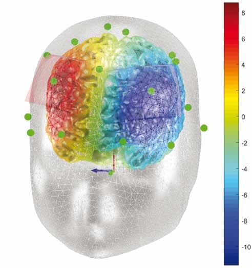 Výpočetní model elektrického potenciálu (V) při terapii bažení. Anoda nad pravým dorzolaterálním prefrontálním kortexem, katoda nad levým dorzolaterálním prefrontálním kortexem.<br> Fig. 8. Computational model of electric potential (V) during therapy for craving. Anode over the right dorsolateral prefrontal cortex, cathode over the left dorsolateral prefrontal cortex.