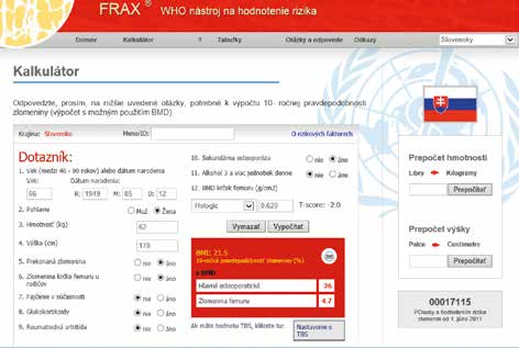 Webová stránka kalkulátoru FRAX – dostupné na http://www.shef.ac.uk/FRAX/