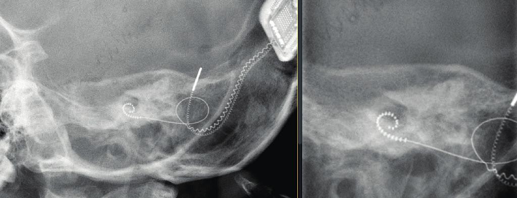Nativní snímek hlavy – boční projekce, kochleární implantát levostranný. Vlevo pohled na celý implantát, vpravo detail svazku elektrod v hlemýždi.
