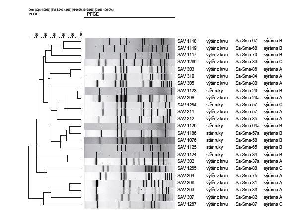 Výsledky pulzní gelové elektroforézy po štěpení endonukleázou SmaI u kmenů <i>Staphylococcus aureus</i> izolovaných od pracovníků sýráren<br> Figure 1. Results of analysis of <i>Staphylococcus aureus</i> isolates from cheese factory staff by pulsed field gel electrophoresis after digestion with restriction endonuclease SmaI
