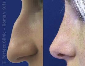 Nos před operací a po ní