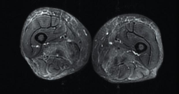 Axiální STIR sekvence – postižení kůže apodkoží upacienta sdermatomyozitidou. Zdroj: Archiv Revmatologického ústavu (ÚVN Střešovice, Discovery 450; 1,5 T)
