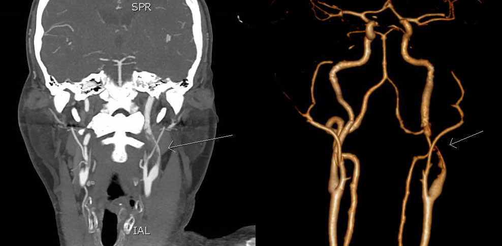 CTA in coronal section (left) and 3D reconstruction (right) shows short intraluminal filling defect in the M2 segment of the left MCA (arrow). MCA – middle cerebral artery<br> Obr. 1 CTA ve frontálním řezu (vlevo) a 3D rekonstrukce (vpravo) ukazuje krátký intraluminální defekt v úseku M2 levé ACM (šipka). ACM – arteria cerbri media
