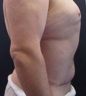 Lower body lifting – pooperační foto z boku