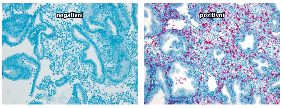 Na obrázku jsou vyjádřeny denzity endometriálních NK buněk CD 16 negativní a pozitivních