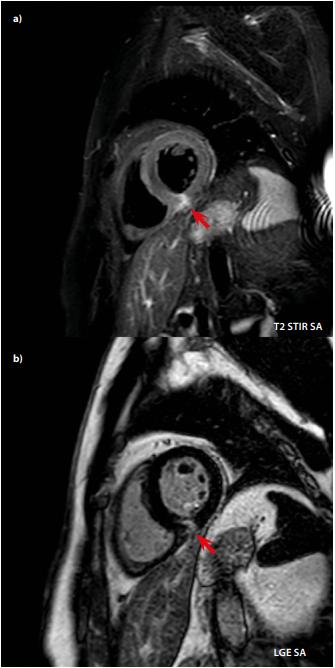 a + b. Pacient s akutní myokarditidou. Na sekvenci s potlačením  tuku (a) je vidět edém dolní stěny myokardu LK. Na sekvenci pozdního sycení  (b) je ve stejném místě korelát patologického midmyokardiálního až subepikardiálního sycení neischemického typu. Diskrétní edém a pozdní sycení  neischemického typu zachyceno i v interventrikulárním septu