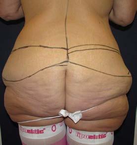 Lower body lifting – předoperační nákres zezadu