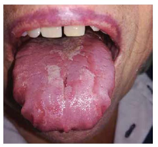 Pacientka s lingua geografica, kde dorsum linguae tvoria atrofované papily. Známky regenerujúcich sa papíl je vidieť v stredovej čiare. Po okrajoch jazyka sú otlaky od zubov.