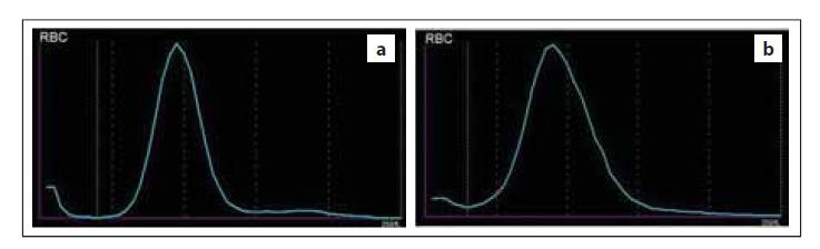 Normální průběh distribuční křivky RBC – (a) normální šíře distribuční křivky (RDW), (b) vyšší šíře distribuční křivky (RDW) způsobená anizocytózou erytrocytů (zdroj: laboratoř IV. IHK).<br> RBC – erytrocyty, RDW – šíře distribuce erytrocytů