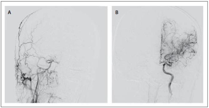 Fig. 1. DSA images of bilateral carotid arteries in anteroposterior view. Occlusion of the distal segment of the internal carotid arteries with moyamoya vessels at the skull base (A, B).<br> Obr. 1. DSA karotid v předozadním zobrazení. Oboustranná okluze distálních segmentů vnitřních karotid s cévněním typu moyamoya u baze lební (A, B).