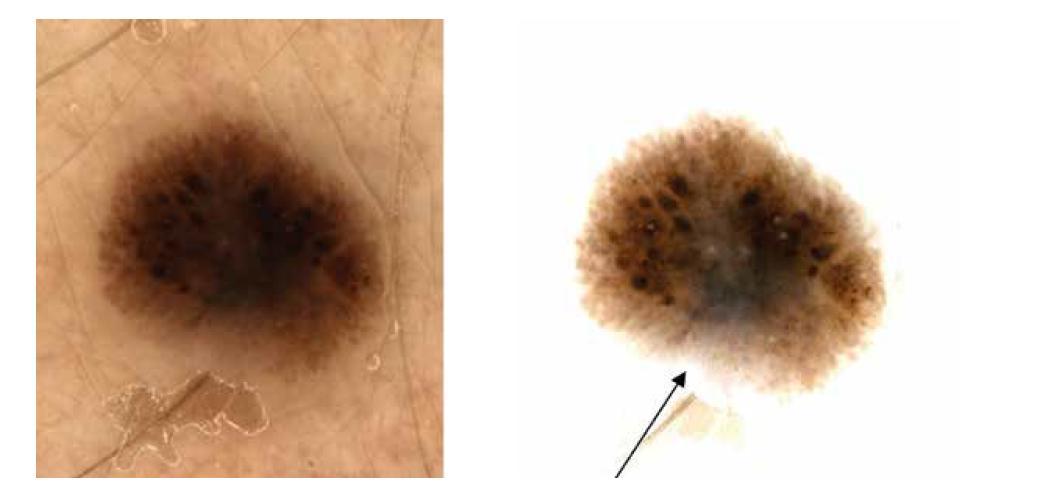 a,b. Dermatoskopicky naznačen obraz připomínající Reedův névus<br> Na pravém snímku (b) také šedavé zastření v dolní střední části léze (šipka), jinak i naznačená dvouvrstevnatost.