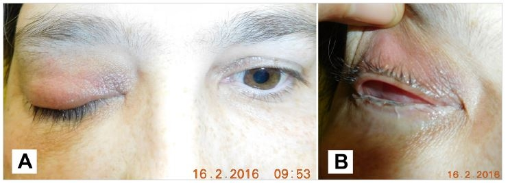 Patient after the surgery 2/2016, pseudoptosis (A), detail of the conjunctival sac (B)