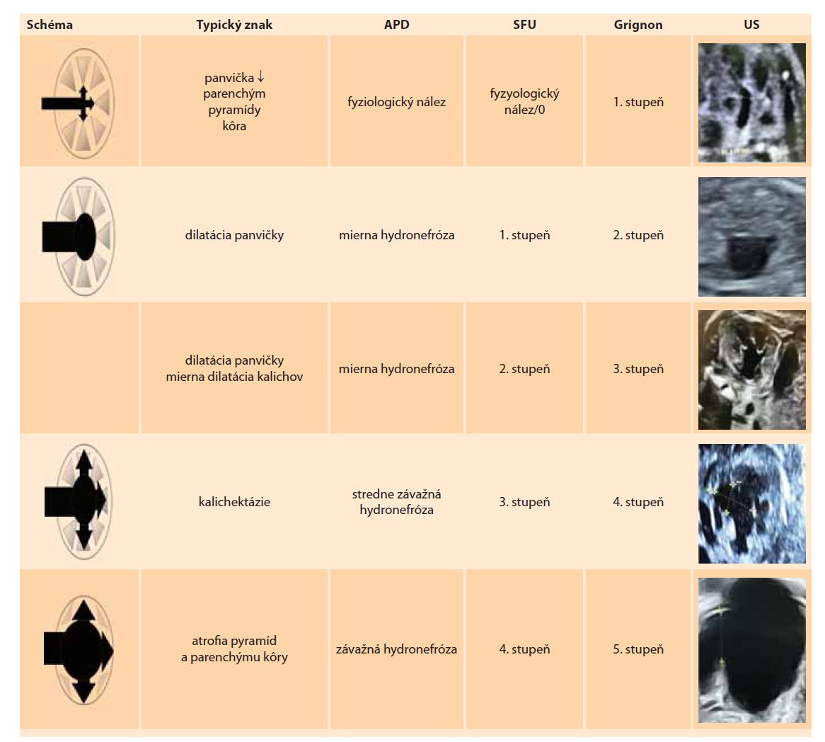 Schéma 1. Schematické znázornenie stupňov jednotlivých klasifikácií antenatálnej hydronefrózy spolu so zodpovedajúcim ultrasonografickým obrazom (schéma autori).<br> APD – antero-posterior diameter, SFU – Spoločnost pre fetalnu urologiu, US – ultrasonografia<br> Scheme 1. Schematic representation of the degrees of individual classifications of antenatal hydronephrosis together with the corresponding ultrasonographic image (diagram by the authors).