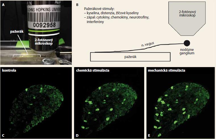 A–E. A – fotografia, B – schéma experimentu. Izolovaný pažerák spolu s vágovými nervami je umiestnený v tkanivovom kompartmente. Pravé alebo ľavé vágové nodózne ganglion obsahujúce neuróny, ktoré exprimujú fluorescenčný vápnikový indikátor GCaMP6S, je umiestnené pod objektívom multifotónového mikroskopu. Mechanické a chemické podnety aplikované do pažeráka aktivujú vágové nervové zakončenia v stene pažeráka a táto aktivácia sa prostredníctvom akčných potenciálov prenáša po axónoch do buniek neurónov v nodóznom gangliu. V aktivovaných vágových nodóznych neurónoch dochádza k vzostupu hladiny intracelulárneho vápnika, ktorá sa zobrazí pomocu fluorescencie GCaMP6S. Obr. C–E zobrazujú aktivácie neurónov vo vágovom nodóznom gangliu pri chemickej a mechanickej stimulácii pažeráka. Kvôli prehľadnosti je zobrazená iba 1 z 10 snímaných optických rovín, ktorá obsahuje približne 250 neurónov. C – za pokojových podmienok nie sú aktivované prakticky žiadne neuróny. D – chemická stimulácia nervových zakončení v pažeráku analógom extracelulárneho adenosintrifosfátu, ktoré sa pri zápale in vivo uvoľňuje z poškodeného tkaniva a spúšťa vnemy bolesti, aktivovala neuróny inervujúce pažerák. E – mechanická stimulácia pažeráka silnou distenziou, ktorá in vivo vyvoláva bolesť, aktivovala nielen neuróny aktivované chemickou stimuláciou, ale aj ďalšie neuróny. Relatívne malý počet neurónov aktivovaných stimuláciou pažeráka vzhľadom na celkový počet neurónov zobrazených v tejto optickej rovine je v súlade s faktom, že iba 5 % vágových neurónov inervuje pažerák, zatiaľ čo ostatné neuróny inervujú ďalšie orgány vrátane žalúdka a pľúc, ktoré v tomto experimente neboli stimulované. Podobným spôsobom sa sníma aj aktivita ganglií zadných miešnych rohov, ktoré sa pripájajú na dráhy v mieche.<br> Fig. 1A–E. A – photograph, B – scheme of the experiment. The isolated oesophagus along with the vagal nerves is located in the tis sue compartment. The right or left vagal nodose ganglion, containing neurons