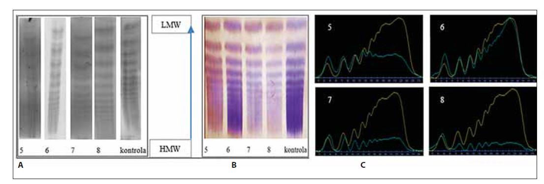 Analýza multimérov vWF vzoriek č. 5–6 a kontroly. (A) klasická – manuálna metóda, (B) poloautomatickým prístrojom Hydrasys, (C) denzitometrické vyhodnotenie.
