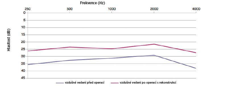 Průměrné hodnoty vzdušného vedení na jednotlivých frekvencích před operací a po operaci s rekonstrukcí.