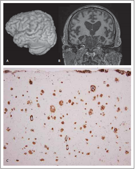 MR a neuropatologie u frontální 