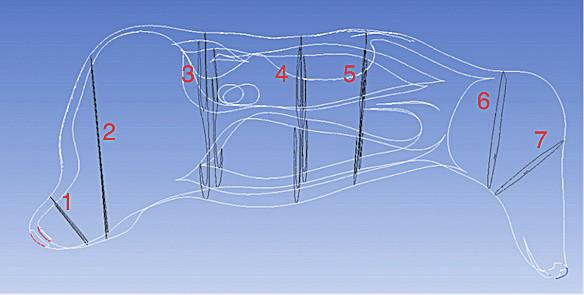 Obr. 4 Frontální řezy v jednotlivých částech nosní dutiny 1-7.