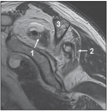 Těžká tuková přestavba obou mm. spinati u 75leté pacientky s dlouhotrvající lézí rotátorové manžety. Turbo spin echo T2 vážený sagitální obraz. <br> Fig. 4. Severe fatty changes in both spinati muscles in a 75-year-old female patient with chronic rotator cuff lesion. Turbo spin echo T2 weighted sagittal images.