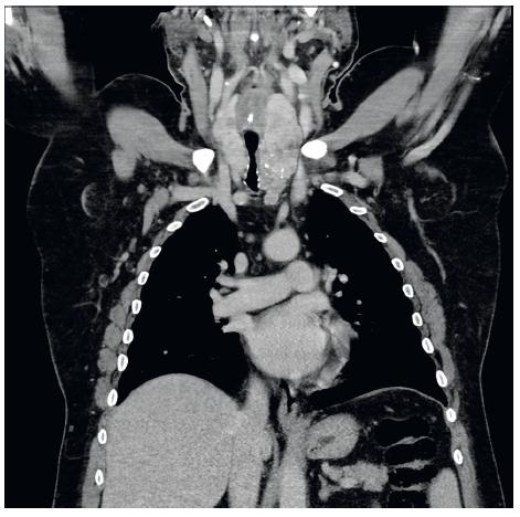 CT snímek před zavedením stentu (koronární) - objemná struma utlačující tracheu částečně zasahující do mediastina.