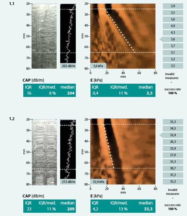 Měření přístrojem FibroScan: 1.1 – normální játra 1.2 – cirhotická játra. Výsledkem měření je hodnota tuhosti jaterní tkáně E udávaná v kPa a hodnota CAP v dB/m spolu s parametry kvality měření. Upraveno podle [3]