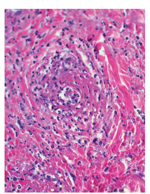 Leukocytoklastická vaskulitida: eozinofilní depozita fibrinu ve stěnách cév, erytrocytární extravazáty, neutrofily s fragmentací jader – leukocytoklazií (HE 400x)