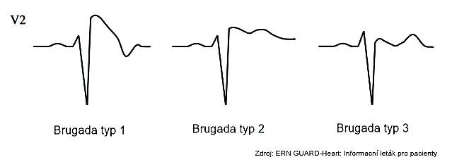 Syndrom Brugadových typ 1, 2 a3.