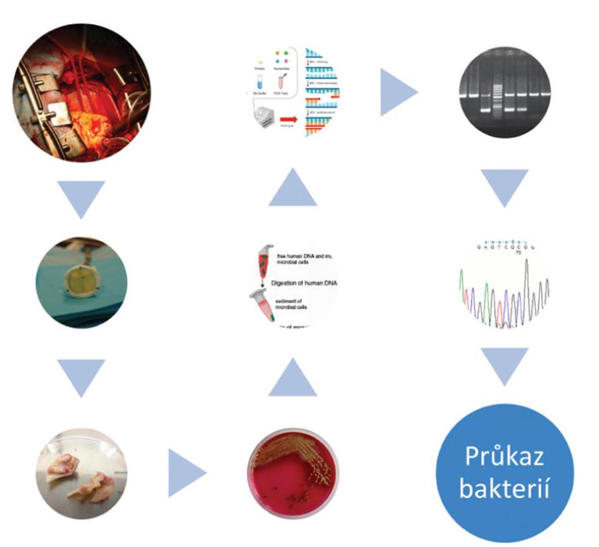 Schéma metodiky – odběr vzorku; umělá srdeční chlopeň; vlastní vzorek srdeční chlopně; mikrobiologická kultivace; extrakce bakteriální DNA, princip PCR; zobrazení gelové elektroforézy; sekvence nukleotidů<br> Fig. 1 Scheme of methodology – sampling; artificial heart valve; own heart valve sample; microbiological cultivation; bacterial DNA extraction, PCR principle; gel electrophoresis imaging; nucleotide sequence