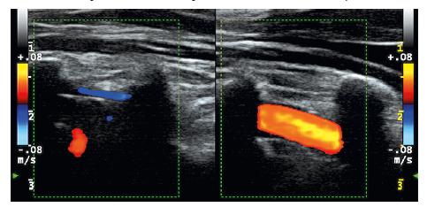 Vľavo je oklúzia AV dx (modrý aj červený signál z paravertebrálnych vén, v lúmene ohraničenom tenkou stenou bez AS plátov nie je signál z prietoku), vpravo je normálny prietok v AV sin. (červený signál v lúmene artérie medzi tieňmi z priečnych výbežkov).