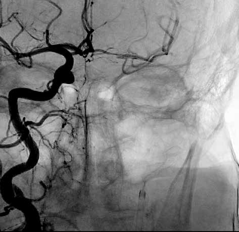 Rekanalizace arteria cerebri media vlevo<br>