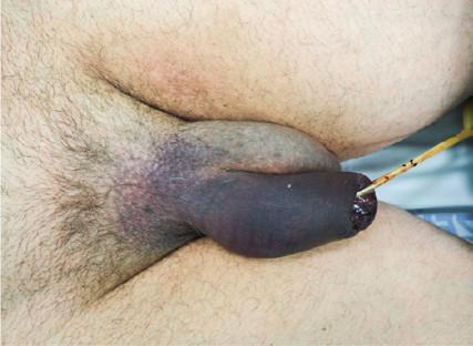 Hematom penisu, zavedený močový katétr se známkami uretroragie<br> Fig. 1. Penile hematoma, indwelling urinary catheter with signs of urethrorhagia