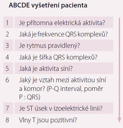 Zjednodušená podoba EKG diagnostiky v osmi krocích.