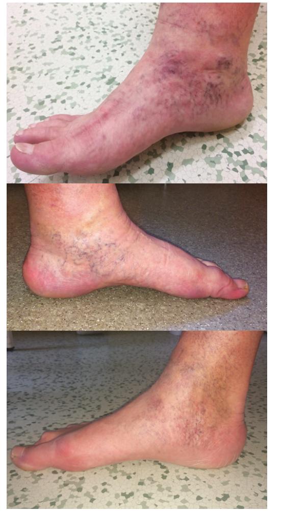 Corona phlebectatica, vějířovitě nebo paralelně uspořádané větší množství dilatovaných intradermálních žil na mediální straně nohy a kolem vnitřního kotníku