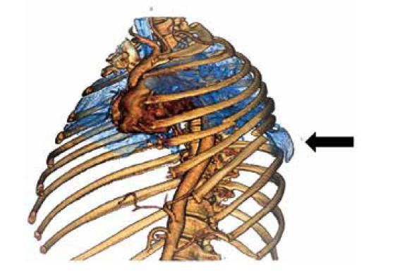 CT 3D rekonstrukce hrudníku, šipka označuje místo herniace<br> Fig. 1: 3D CT reconstruction of the chest, the arrow indicates the point of herniation