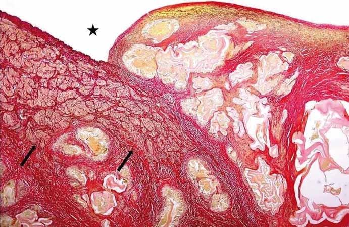 Angioinvaze nevitálních parazitárních struktur echinokoka do cévních struktur. Hvězdička ukazuje lumen cévy, šipky muskuloelastické složky cévní stěny destruované parazitem (barvení SREL, původní zvětšení 100×). (Zdroj: MUDr. Hana Skopcová).<br> Fig. 1. Angioinvasion of non-vital parasitic structures of echinococcus into vessels. The star shows the vessel lumen; arrows show musculoelastic tissue of the vascular wall infi ltrated by parasitic structures (SREL staining, original magnifi cation ×100). (Author: MUDr. Hana Skopcová).